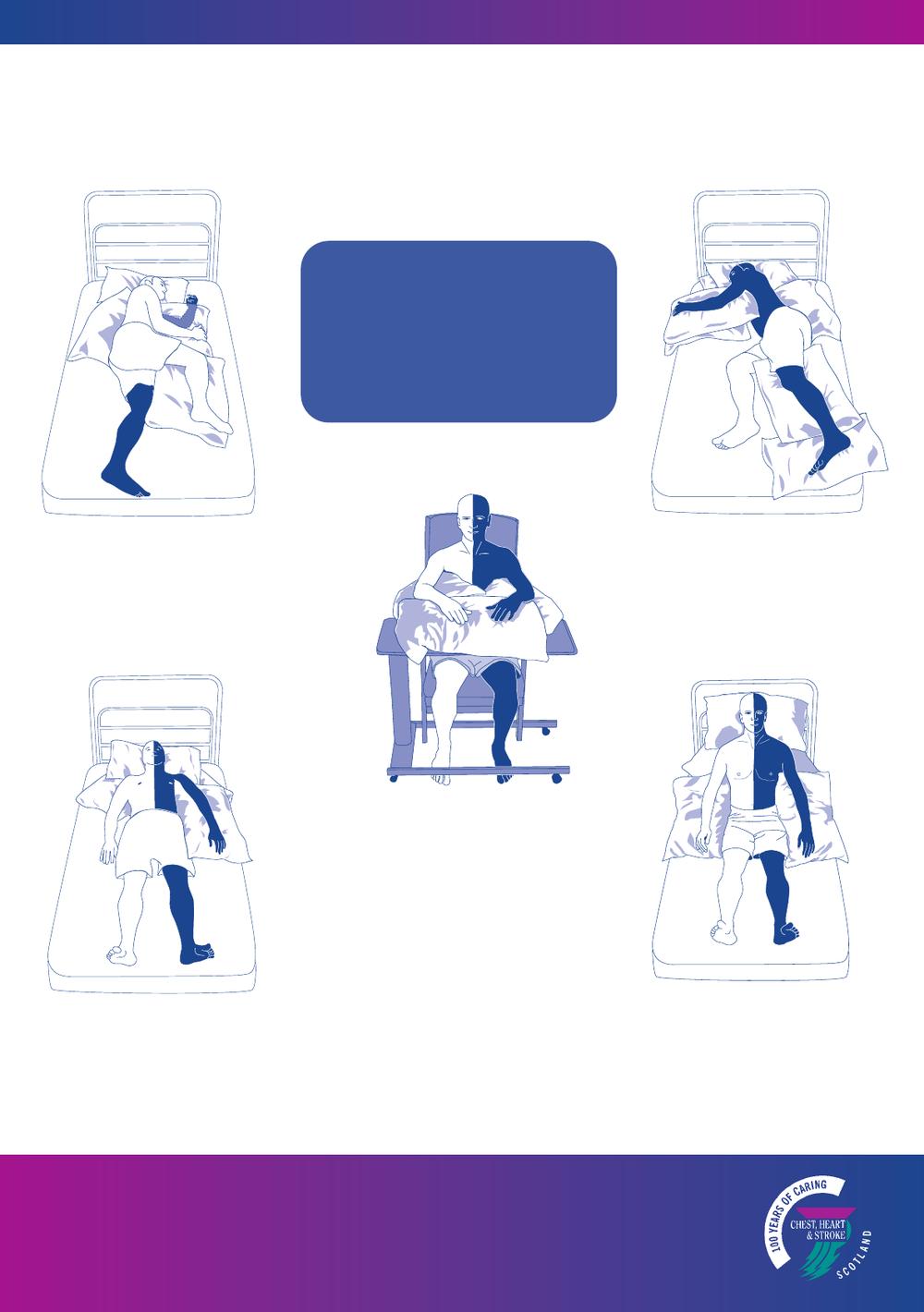 """9-14 ноября. Вебинар 4 """"Позиционирование и перемещение, пациентов перенесших инсульт"""""""